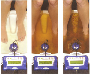 Changing water colour as the detoxification footbath does its work, cleansing the body of toxins.